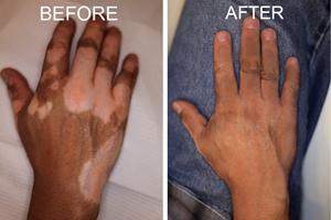 Obat Herbal Vitiligo